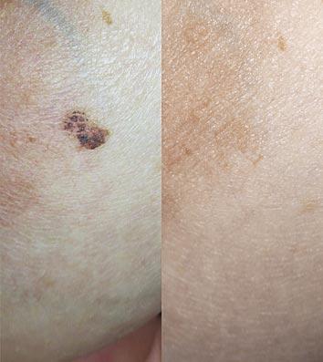 Aging Spots, Moles, Pigmentation Removal